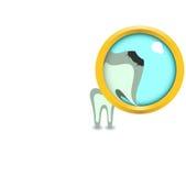 увеличьте больной зуб Стоковые Изображения