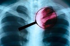 Увеличиванный комод рентгеновского снимка изображения человеческий опасность бесплатная иллюстрация