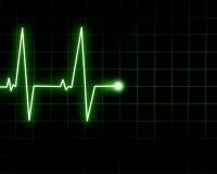 Удар сердца Стоковое Изображение RF