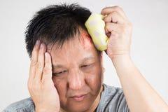 Укомплектуйте личным составом обрабатывать его раненое тягостное опухнутое рему лба с icep стоковое изображение