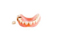 упаденный зуб челюсти вне Стоковое Фото