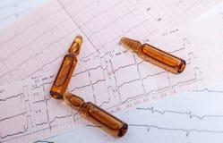 Управление тарифа сердца EKG Стоковое Изображение