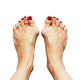 Уродство Valgus ног должных перекрестного flatfoot (valgus hallux) Стоковые Изображения