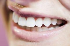 Красивейшая усмешка зубов Стоковая Фотография RF