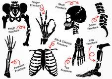 Установите значок перелома кости Стоковые Фото