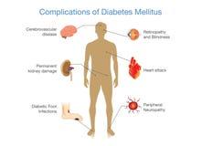 Усложнения сахарных диабетов Стоковая Фотография RF