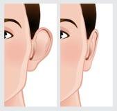 Ухо прикалывая, Otoplasty Стоковое Изображение RF