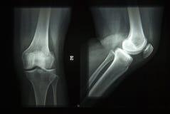 луч колена x Стоковое Изображение RF