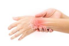 Ушиб косточек запястья руки стоковая фотография