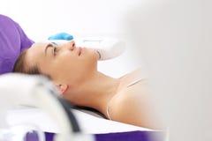Удаление лазера обесцвечивания кожи на стороне стоковое изображение