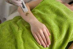 Удаление волос лазера на руке ` s девушки Стоковые Фото