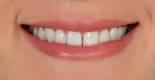 Улыбка с зубами Стоковая Фотография
