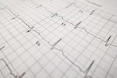Фокус Slective листа ekg испытания сердца Стоковая Фотография
