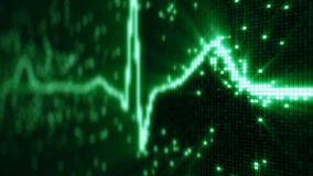 Форма волны ИМПа ульс электрокардиограммы EKG на pixelated экране Стоковая Фотография