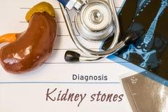 Фото камней в почках диагноза Диаграмма почки лежит рядом с надписью диагноза камней в почках, ультразвука и испытания MRI re Стоковые Изображения RF
