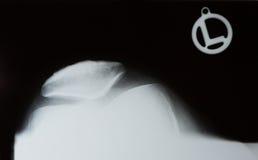 Фото рентгеновского снимка человеческого колена стоковое фото rf