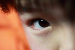 Подбитый глаз Стоковое фото RF