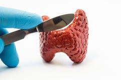 Хирургия тиреоида Хирург держа в скальпеле gloved руки хирургическом сверх модели тома тироидной железы Концепция для operat хиру стоковые изображения