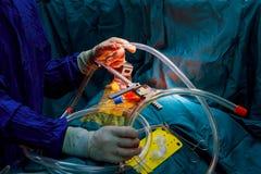 Хирурги выполняют деятельность Крупный план doctor& x27; рука s в перчатках во время деятельности Стоковые Фотографии RF