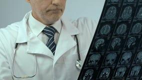 Хирург рассматривает фильм рентгеновского снимка мозга черепа, раздражанный с результатами, рак мозга видеоматериал