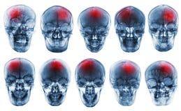 ход цереброваскулярная авария Комплект черепа рентгеновского снимка фильма стоковое изображение rf