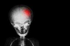ход снимите череп рентгеновского снимка и тело ребенка с красным цветом на голове Неврологическая концепция стоковое фото rf
