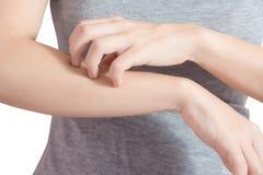 Царапающ ее руку в изолированной женщине на белой предпосылке Путь клиппирования на белой предпосылке стоковая фотография rf
