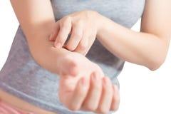 Царапающ ее руку в изолированной женщине на белой предпосылке Путь клиппирования на белой предпосылке стоковая фотография