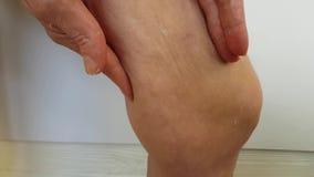 Целлюлит demostrates ног женщины сток-видео