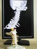 Цервикальная модель позвоночника и изображение MRI стоковая фотография