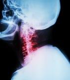 Цервикальный спондилез Снимите рентгеновский снимок цервикального позвоночника (бокового положения) (взгляд со стороны) Стоковое фото RF