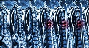 Цервикальный спондилез с herniation диска (MRI цервикального позвоночника: покажите цервикальный спондилез с обжатием herniation  стоковая фотография rf