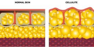 Целлюлит и нормальная кожа иллюстрация штока