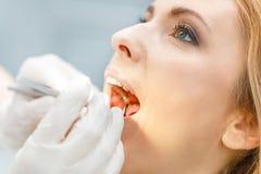 Частично взгляд красивой женщины на зубоврачебной проверке вверх стоковые фотографии rf