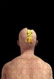 часть разума мозга пропавшая Стоковое фото RF