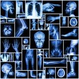 Часть рентгеновского снимка собрания множественная человека стоковая фотография rf