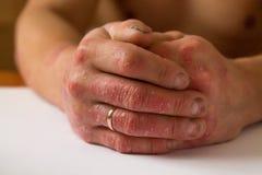 Человек на псориазе пятен руки и брюшка стоковые фотографии rf