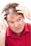 Человек потревожился о Balding стоковая фотография