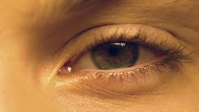 Человек страдая синдром сухого глаза и подмигивая, офтальмология, весьма конец-вверх акции видеоматериалы