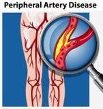 Человек с периферийным заболеванием артерии иллюстрация вектора