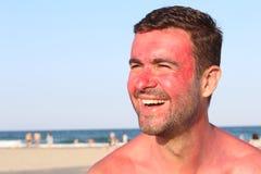 Человек усмехаясь пока получающ sunburned Стоковая Фотография RF