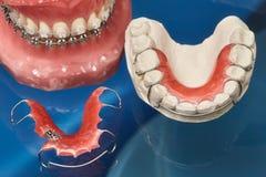Человеческие челюсть или зубы моделируют с расчалками связанными проволокой металлом зубоврачебными Стоковые Изображения RF