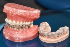 Человеческие челюсть или зубы моделируют с расчалками связанными проволокой металлом зубоврачебными Стоковые Изображения
