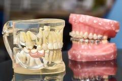 Человеческие челюсть или зубы моделируют с расчалками связанными проволокой металлом зубоврачебными Стоковое фото RF