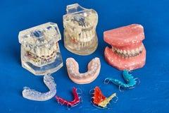 Человеческие челюсть или зубы моделируют с расчалками связанными проволокой металлом зубоврачебными стоковая фотография rf
