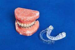 Человеческие челюсть или зубы моделируют с расчалками связанными проволокой металлом зубоврачебными Стоковая Фотография