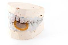 челюсти владением монетки Стоковое Фото