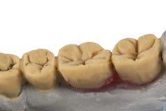 Челюсть дантиста изолированная на белизне стоковое изображение rf