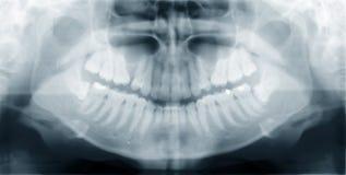 челюсть Стоковое Изображение