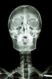 Череп и цервикальный позвоночник нормального человека Стоковая Фотография
